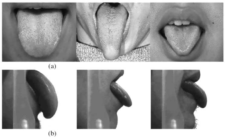 Tongue_recognition