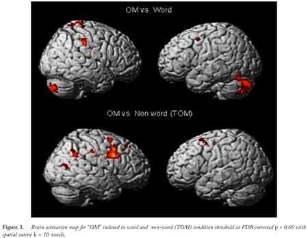 om-brain