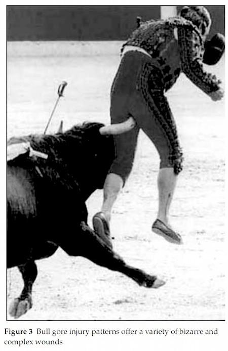 bullfighting-injury