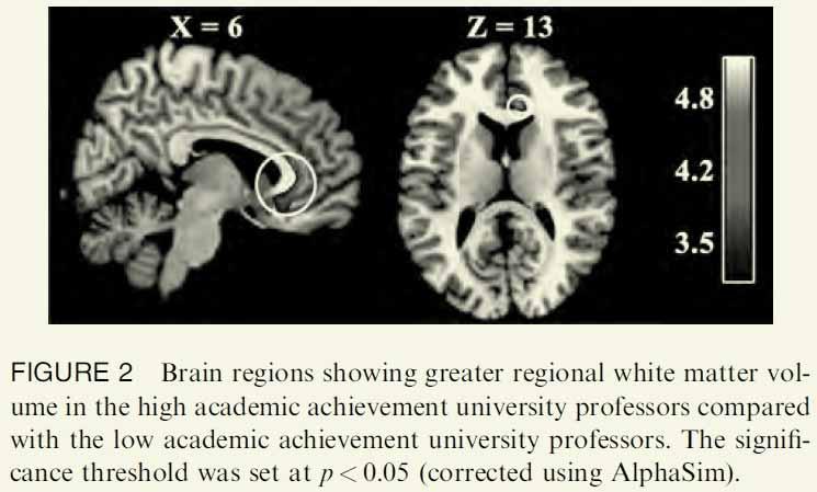 Profs_Brains